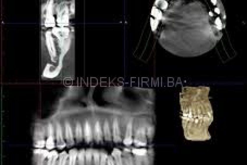 3-d-zuba-doboj-7